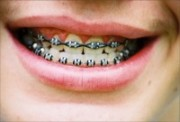 dentist-dental-braces-philippines
